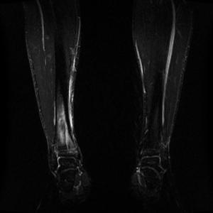 Magnetröntgenbild av mina ben